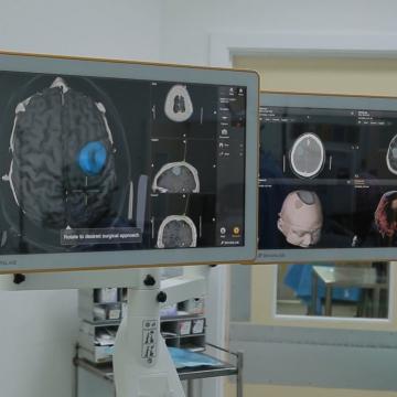UHWI Reduces Brain Surgery Waiting List with Latest Technology